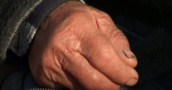 Medicii susțin că pacientul a fost adus la spital în stare de ebrietate.
